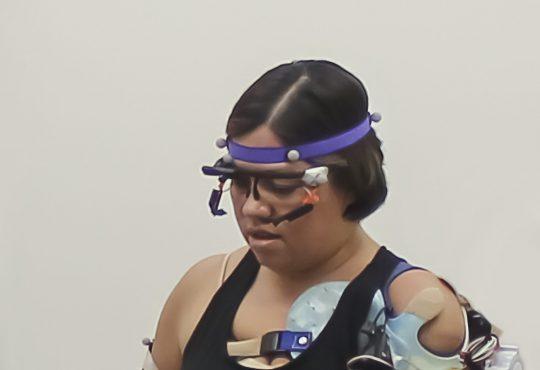 Brazo biónico permite a pacientes con amputaciones recuperar movilidad de miembros superiores